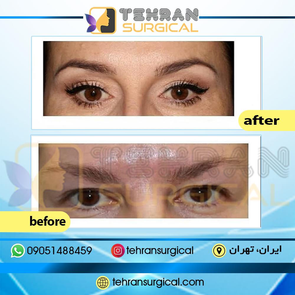جراحی پلک چشم