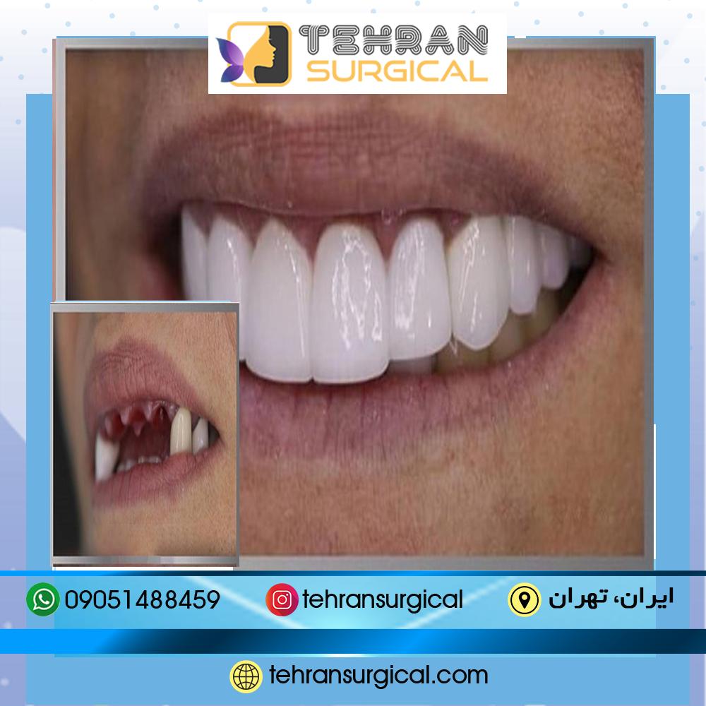 ایمپلنت دندان در تهران سرجیکال