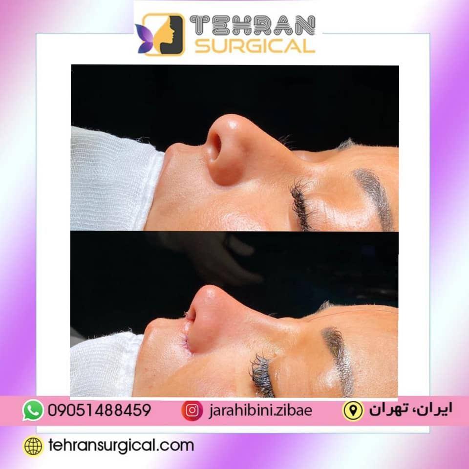 بهترین جراح بینی نیمه فانتزی در تهران
