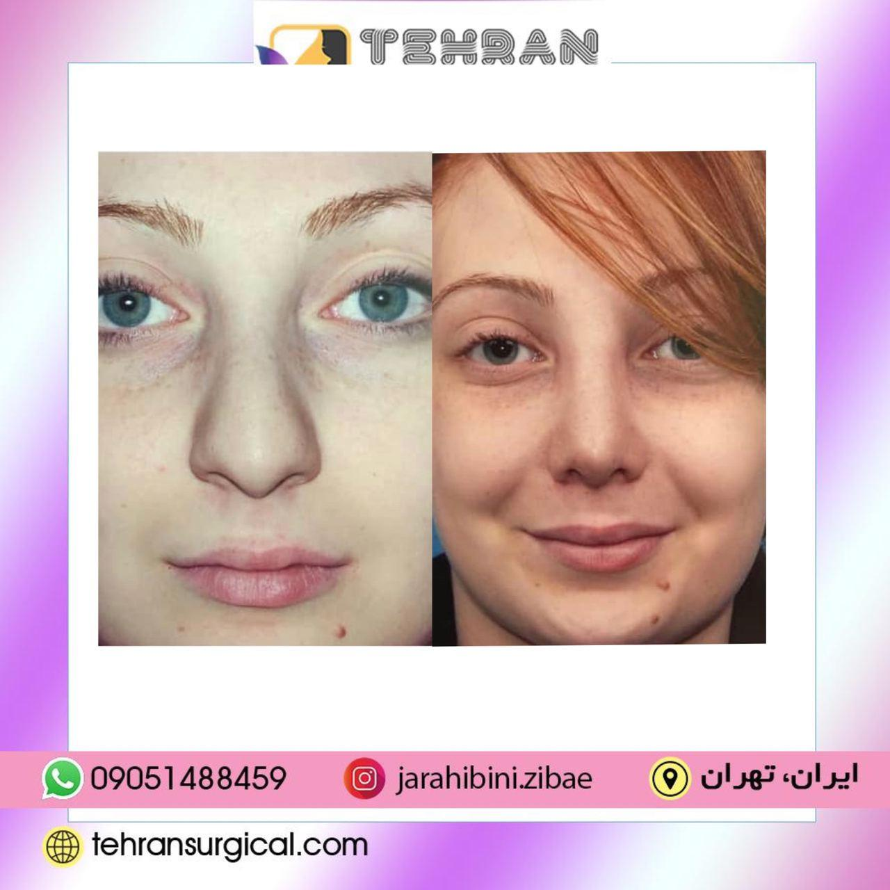 جراحی بینی چگونه انجام میشود