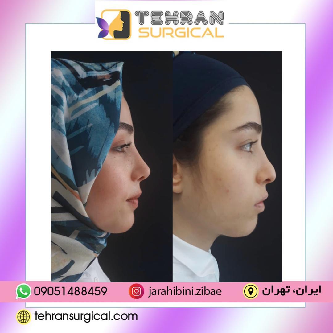 اقدامات قبل و بعد عمل بینی