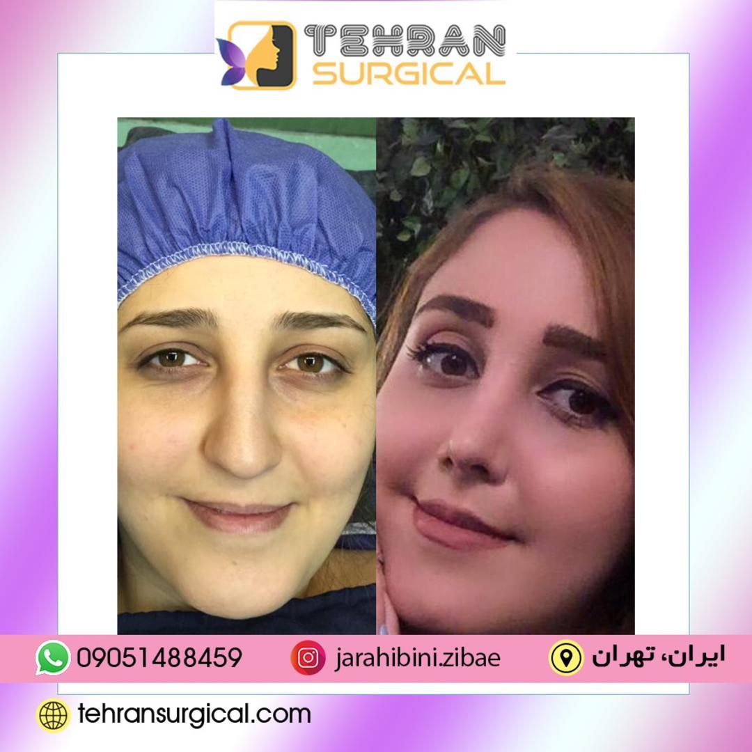 معیار انتخاب جراح بینی