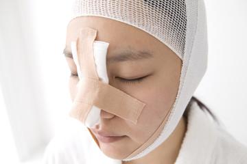 روند بهبود بعد از عمل بینی