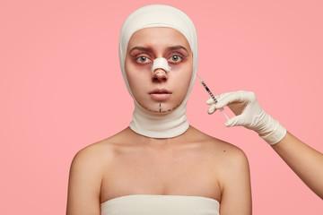 عوارض خندیدن بعد از عمل بینی