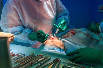 جراحی بینی استخوانی دکتر قدسی زاد