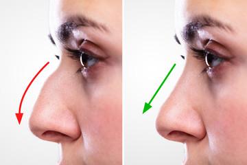 تفاوت جراحی بینی طبیعی و جراحی فانتزی