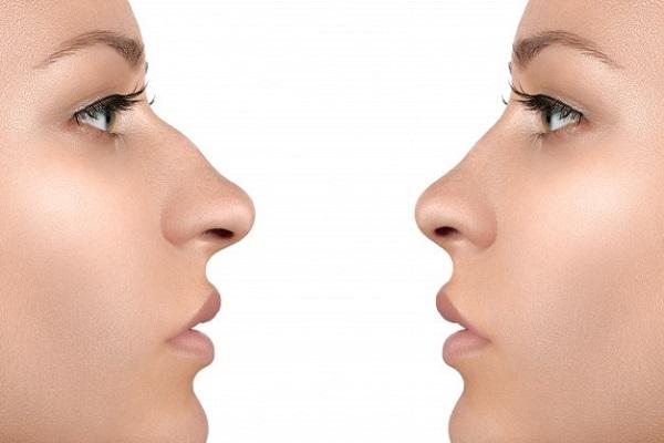 عمل بینی گوشتی بهتر است یا استخوانی؟