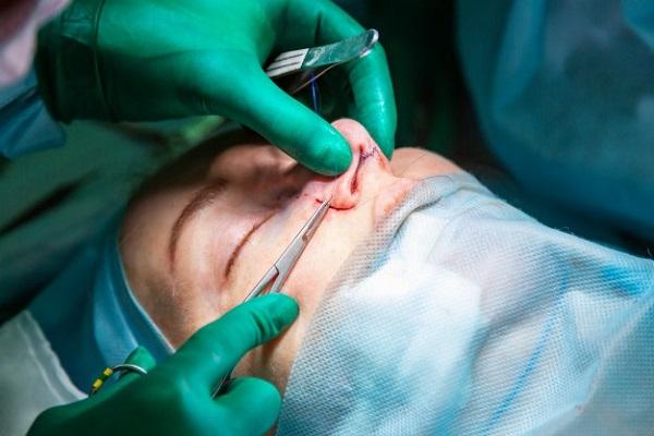 نکات مهم قبل از جراحی بینی گوشتی